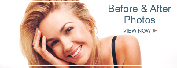 before and after Facelift Surgery New York