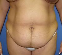 Body Contouring Case 117 - Liposuction - Before