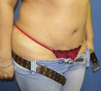 Body Contouring Case 117 - Liposuction - After