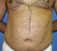 Body Contouring Case 121 - Liposuction - Before