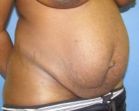 Body Contouring Case 122 - Tummy Tuck - After