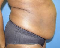 Body Contouring Case 123 - Tummy Tuck - Before