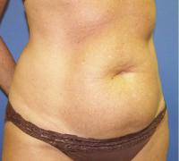 Body Contouring Case 127 - Mommy Makeover - Before
