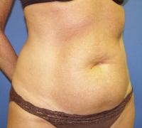 Body Contouring Case 134 - Tummy Tuck with Liposuction - Before