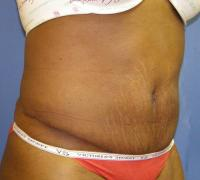 Body Contouring Case 139 - Tummy Tuck with Liposuction - After