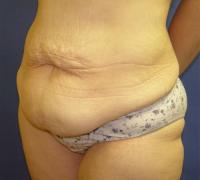 Body Contouring Case 141 - Tummy Tuck with Liposuction - Before