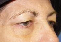 Facial Surgery Case 166 - Eyelid Rejuvenation - Before