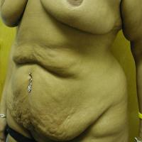 After Massive Weight Loss Case 113 - Body Lift - Before
