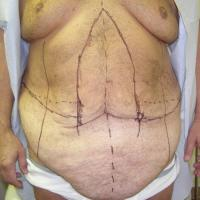 After Massive Weight Loss Case 114 - Body Lift - Before