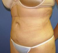 Body Contouring Case 118 - Liposuction - After