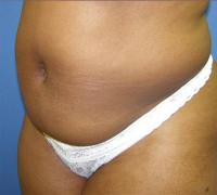 Body Contouring Case 119 - Liposuction - Before