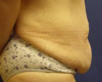 Body Contouring Case 124 - Tummy Tuck - Before