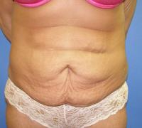 Body Contouring Case 126 - Mommy Makeover - Before