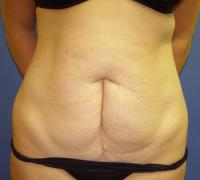 Body Contouring Case 128 - Mommy Makeover - Before
