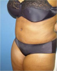 Body Contouring Case 129 - Liposuction, Abdomen, Waist - After