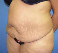 Body Contouring Case 131 - Tummy Tuck with Liposuction - Before