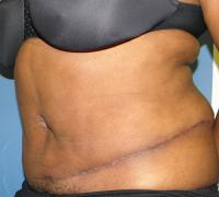 Body Contouring Case 132 - Tummy Tuck with Liposuction - After