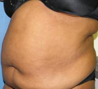 Body Contouring Case 132 - Tummy Tuck with Liposuction - Before