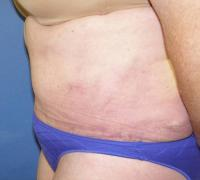 Body Contouring Case 137 - Tummy Tuck with Liposuction - After