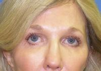 Facial Surgery Case 164 - Eyelid Rejuvenation - After