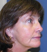 Facial Surgery Case 169 - Face Lift - After