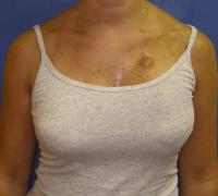 Breast Reconstruction Case 178 - Implant Reconstruction - Before