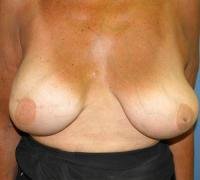 Breast Reconstruction Case 182 - Implant Reconstruction - After