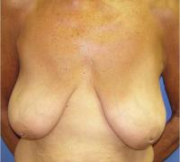 Breast Reconstruction Case 182 - Implant Reconstruction - Before