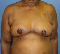 Breast Reconstruction Case 194 - Oncoplastic Reconstruction - After