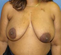 Breast Reconstruction Case 195 - Oncoplastic Reconstruction - Before