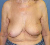Breast Reconstruction Case 202 - Oncoplastic Reconstruction - Before